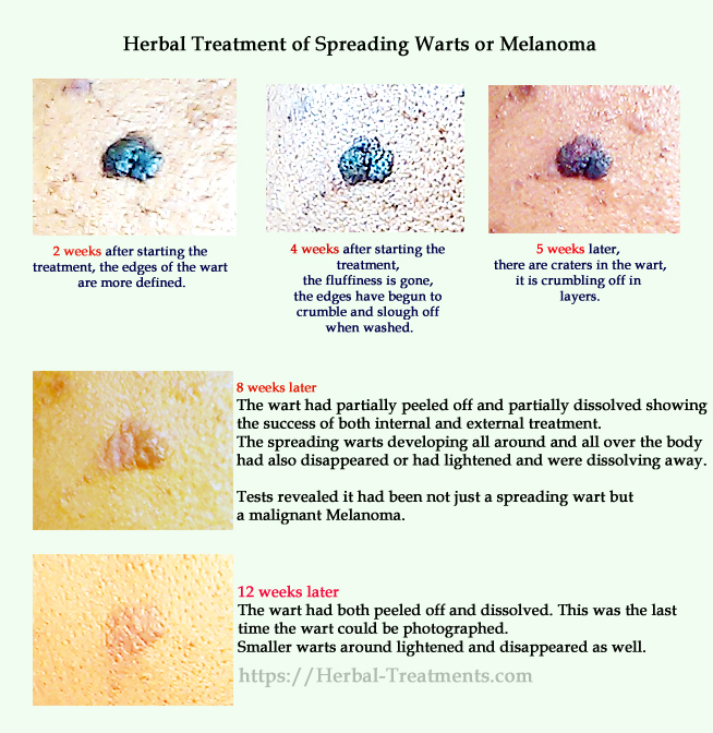 Legal herbs that disappear Melanoma, Warts, Skin Tags