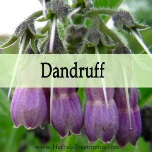 Herbal Medicine for Dandruff