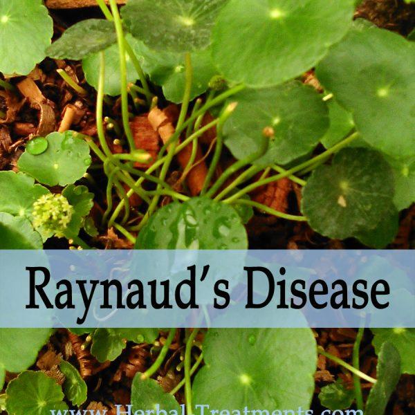 Herbal Treatment of Raynaud's Disease