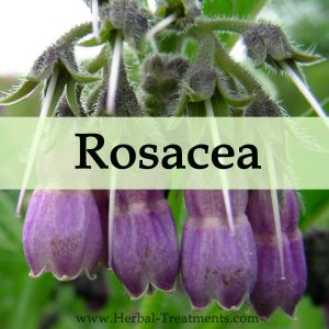 Herbal Medicine for Rosacea