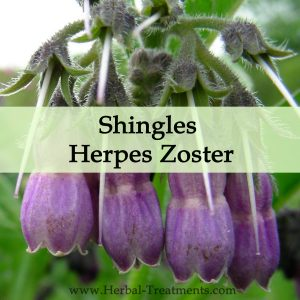Herbal Medicine for Shingles or Herpes Zoster