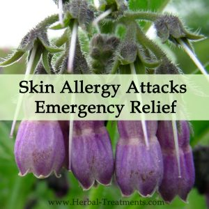 Herbal Medicine for Skin Allergy Attacks, Irritation - Emergency Relief