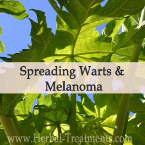 Herbal Treatment Program for Spreading Warts & Melanoma