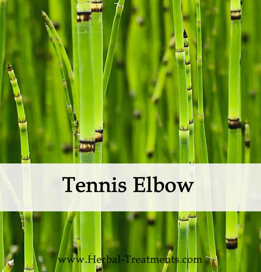 Herbal Medicine for Tennis Elbow